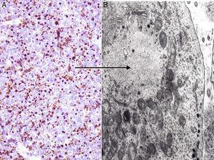 Inmunohistoquímica del carcinoma de células de Merkel. A: tinción citoplasmática positiva de la citoqueratina 20 con una disposición característica paranuclear (dot-like). B: microscopia electrónica de una célula tumoral donde se aprecian todos los filamentos intermedios agrupados.