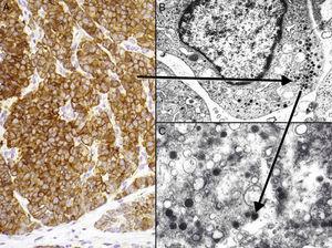Inmunohistoquímica del carcinoma de células de Merkel. A: tinción inmunohistoquímica de diferenciación neuroendocrina (cromogranina) con la tinción citoplasmática granular característica. B y C: microscopia electrónica que corresponde a los gránulos electrodensos dispersos en el citoplasma que presentan las células tumorales del CCM.
