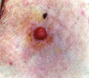 Imagen clínica de un porocarcinoma ecrino (PE) de la serie: pápula rosada inferior a 2cm, la forma más frecuente de presentación de esta neoplasia.