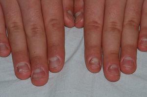 Superficie anfractuosa y quebradiza de todas las láminas ungueales, aunque menos evidentes en los quintos dedos. Se aprecian manchas en aceite y leuconiquia puntiforme.