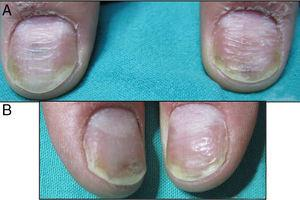 (A) Matrix and bed nail psoriasis before treatment. (B) After four sessions of PDL (right thumbnail) and four sessions of Nd:YAG (left thumbnail).