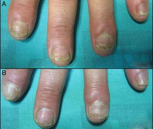 (A) Distal onycholisis, subungueal hyperkeratosis and distal oil drop of nail plate psoriasis of the left hand before the treatment. (B) After four sessions of Nd:YAG.