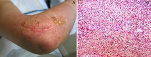 A. Múltiples vesículas y ampollas en zona irradiada por tumor epitelioide de vaina de nervio periférico. B. Denso infiltrado inflamatorio con numerosos eosinófilos (hematoxilina-eosina x10).