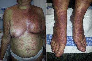 A. Cuadro de eritema multiforme con afectación predominante inicial en la zona irradiada por carcinoma de mama previo. B. Posterior extensión en forma de dianas atípicas.