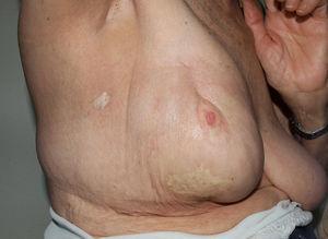 Morfea posradioterapia en paciente con antecedente de carcinoma de mama derecha. Imagen cedida por el Doctor José Antonio Avilés Izquierdo.