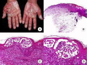 Micosis fungoide ampollar. A. Imagen clínica que muestra lesiones vesiculoampollosas afectando de forma simétrica a ambas manos. B. Vista panorámica que muestra ampollas intraepidérmicas. C, D. Detalle de las ampollas, con linfocitos atípicos en la dermis papilar y epidermotropismo.