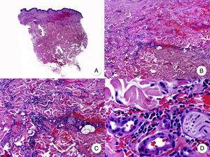 Micosis fungoide intersticial. A. Vista panorámica que muestra un leve infiltrado en la dermis. B. A mayor aumento se observa que el infiltrado se dispone siguiendo un patrón intersticial. C, D. Detalle del infiltrado de predominio linfocitario que se dispone entre los haces de colágeno y otras estructuras anexiales de la dermis.