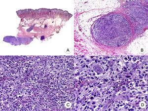 Micosis fungoide con transformación en células grandes. A. Vista panorámica que muestra una biopsia de cuero cabelludo con infiltración parcheada de la dermis. B. Detalle del infiltrado neoplásico en la hipodermis. C, D. A mayor aumento se observa que el infiltrado está compuesto por células neoplásicas grandes, pleomórficas y anaplásicas.
