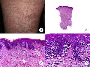 Micosis fungoide papular. A. Imagen clínica que muestra pápulas de pequeño tamaño no foliculocéntricas en las extremidades inferiores. B. Vista panorámica que muestra un infiltrado leve en la dermis papilar. C, D. Detalle del infiltrado dérmico con linfocitos atípicos y epidermotropismo.