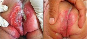 A) Hemangioma infantil de crecimiento mínimo o detenido, segmentario ulcerado previo tratamiento, y B) Reepitelización completa tras 40 días de terapia con propranolol oral.