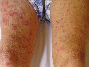 Lesiones de herpes zoster diseminado comprometiendo ambos muslos en un paciente inmunodeprimido.