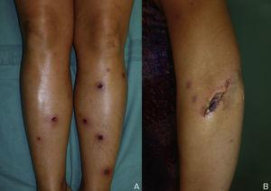 (A) Ulcerated necrotic lesions on both lower legs. (B) Linear ulcer on the left arm exhibiting the pathergy phenomenon.