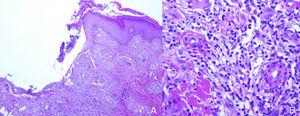 (A) Ulcerated epidermis with a diffuse inflammatory infiltrate in the dermis. (B) Infiltrates formed of neutrophils, histiocytes, lymphocytes, and occasional multinucleated giant cells.