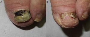 A) Onicoclasis y onicomadesis con pigmento negruzco de fondo en el lecho ungueal. B) Anoniquia parcial residual con desaparición casi completa del pigmento.