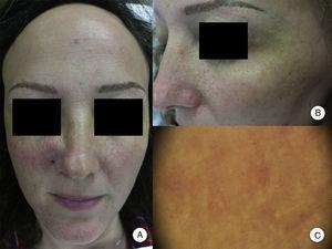 Pápulas faciales en la alopecia frontal fibrosante. A. Se aprecian pápulas foliculares no inflamatorias, monomorfas, color piel, de aspecto rugoso o áspero y sin eritema ni descamación asociados. B. Detalle de las pápulas faciales. C. Con dermatoscopia se aprecian puntos blancos foliculares, sobre la red vascular que se observa habitualmente a nivel facial.