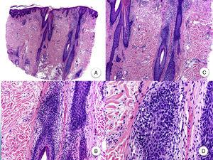 Histopatología de la alopecia frontal fibrosante. A y B. En cortes longitudinales se observa infiltrado perifolicular (H-E ×10, H-E ×100, figuras A y B, respectivamente). C y D. A mayor aumento se observa una fibrosis concéntrica perifolicular e infiltrado linfocitario en la periferia (H-E ×200, H-E ×400, figuras C y D, respectivamente).