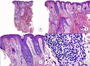 Biopsia una pápula facial. A y B. A bajo aumento se aprecian varios folículos pilosos de tipo velloso con numerosas glándulas sebáceas (H-E ×10, H-E ×100). C y D. Detalle del infiltrado inflamatorio rodeando la porción superior de los folículos pilosos vellosos (H-E ×200, HE ×400).