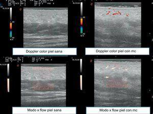 Imágenes ecográficas comparando doppler color en piel sana y en piel con MC y modo X flow en piel sana y piel con MC.