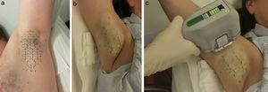 Colocación de plantilla antes del tratamiento (a). Aplicación de anestesia tumescente (b). Liberación de la energía microondas con manípulo (c).