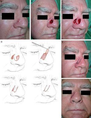 A. Carcinoma basocelular en el lateral nasal. B. Defecto final y diseño de la reconstrucción mediante un colgajo de trasposición digitiforme de la piel del surco nasofacial. C. Colgajo disecado en el plano subcutáneo, desplazado para cubrir el defecto. D. Ilustración que muestra la aproximación de los bordes del defecto con 2 suturas en «cuerda de guitarra», la reducción del área cruenta y el ensamblaje final del lóbulo. E. Resultado inmediato tras la sutura con seda de 6/0. F. Aspecto a las 24horas.