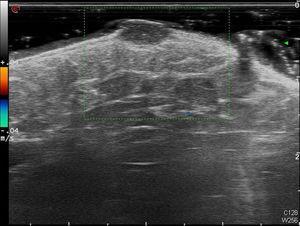 Imagen de ecografía doppler de alta frecuencia (18mHz) en la que se observa una lesión bien delimitada, homogénea, hipoecoica localizada en la dermis de 6,5×3,5mm sin flujo en su interior.