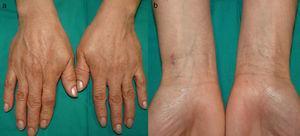 Pigmentación moteada marrón lentiginosa en el dorso de ambas manos (a) y la cara anterior de las muñecas (b).