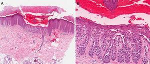 A y B. Acantólisis suprabasal con hendiduras «lagunas» hemorrágicas intraepidérmicas.