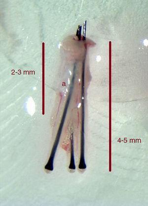 Los punches de punta afilada se deben introducir solo 2-3mm en profundidad para reducir el riesgo de transección de los folículos. Los punch romos e híbridos se pueden introducir a mayor profundidad (>4mm).(a): Glándula sebácea.