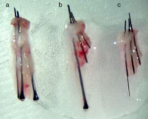 Unidades foliculares. (a): Normal y sin daño; (b): con transección parcial de 2 folículos; (c): con transección total de la unidad folicular.