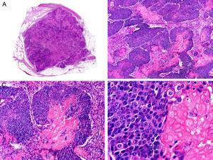Características histopatológicas del pilomatrixcarcinoma. A. Visión panorámica mostrando una lesión constituida por numerosos islotes tumorales infiltrando la dermis. B. Islotes de células matriciales con células sombra en su centro. C. Detalle de las células matriciales y las células sombra. D. Detalle a gran aumento de las células neoplásicas con diferenciación matricial. (Hematoxilina-eosina, A ×10, B ×40, C ×200, D ×400).