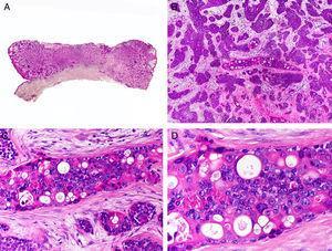 Características histopatológicas del porocarcinoma. A. Visión panorámica mostrando una neoplasia ulcerada que infiltra todo el espesor de la dermis. B. Agregados neoplásicos de forma y tamaño variable. C. Algunos agregados neoplásicos muestran diferenciación ductal. D. Detalle de los pequeños ductos tapizados por células cuticulares. (Hematoxilina-eosina, A ×10, B ×40, C ×200, D ×400).