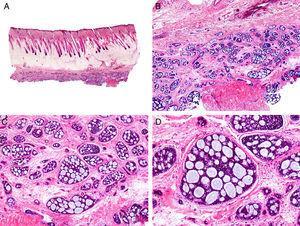 Características histopatológicas del carcinoma adenoide-quístico. A. Visión panorámica mostrando una neoplasia mal delimitada que infiltra la fascia subcutánea. B. A mayor aumento los agregados de células neoplásicas muestran un patrón adenoide-quístico. C. Agregados neoplásicos con patrón adenoide-quístico de forma y tamaño variable. D. Detalle a mayor aumento de las células neoplásicas. (Hematoxilina-eosina, A ×10, B ×40, C ×200, D ×400).