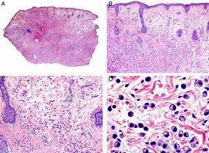 Características histopatológicas del carcinoma de células en anillo de sello de párpado. A. Visión panorámica mostrando una neoplasia mal delimitada que infiltra todo el espesor de la dermis. B. La neoplasia está constituida por células aisladas salpicadas por la dermis. C. En algunas áreas el estroma de la neoplasia es mixoide. D. Detalle a gran aumento de las células neoplásicas con morfología en anillo de sello. (Hematoxilina-eosina, A ×10, B ×40, C ×200, D ×400).