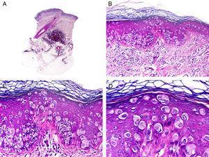 Características histopatológicas de la enfermedad de Paget extramamaria. A. Visión panorámica mostrando una lesión intraepidérmica. B. La neoplasia está constituida por células neoplásicas aisladas salpicando la epidermis. C. Estas células neoplásicas muestran un núcleo pleomórfico y abundante citoplasma pálido. D. Detalle de las células neoplásicas salpicando la epidermis. (Hematoxilina-eosina, A ×10, B ×40, C ×200, D ×400).