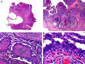 Características histopatológicas del siringocistoadenocarcinoma papilífero. A. Visión panorámica mostrando agregados de células neoplásicas de forma y tamaño variable infiltrando la dermis. B. Formaciones papilares conectadas con la superficie epidérmica. C. Las estructuras papilares están tapizadas por una doble hilera de células epiteliales. D. Imágenes de atipia y pleomorfismo nuclear en las células epiteliales que tapizan las papilas. (Hematoxilina-eosina, A ×10, B ×40, C ×200, D ×400).