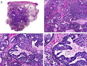 Características histopatológicas del carcinoma papilar. A. Visión panorámica mostrando una neoplasia que infiltra todo el espesor de la dermis y se extiende al tejido celular subcutáneo. B. Agregados de células neoplásicas de forma y tamaño variable. C. Esbozos de formaciones papilares en algunos de los agregados neoplásicos. D. Detalle de las formaciones papilares. (Hematoxilina-eosina, A ×10, B ×40, C ×200, D ×400).