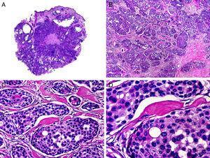 Características histopatológicas del hidroadenocarcinoma apocrino. A. Visión panorámica de una neoplasia que infiltra todo el espesor de la dermis. B. Variabilidad de agregados neoplásicos en forma y tamaño. C. Algunos agregados neoplásicos están constituidos por células de citoplasma pálido. D. Detalle de uno de los agregados neoplásicos mostrando diferenciación ductal. (Hematoxilina-eosina, A ×10, B ×40, C ×200, D ×400).