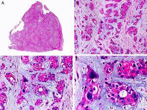 Características histopatológicas del tumor mixto maligno. A. Visión panorámica mostrando una neoplasia mal delimitada. B. Agregados de células epiteliales neoplásicas inmersas en un estroma mixoide. C. Los agregados neoplásicos están constituidos por células de núcleo atípico y pleomórfico. D. Alguno de los agregados neoplásicos muestra evidencia de diferenciación ductal. (Hematoxilina-eosina, A ×10, B ×40, C ×200, D ×400).