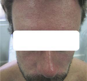 Pápulas eritematosas confluentes en la frente, el dorso nasal y ambas mejillas, a las 24horas de evolución.