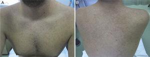 Exantema papular eritematoso en la cara anterior (A) y posterior del tronco (B).