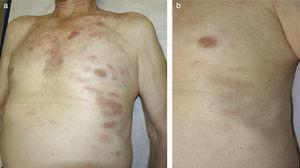 a) Placas eritematodescamativas en tórax y flancos. Presentación inicial. b) Curación de las lesiones cutáneas al mes de finalizar el tratamiento quimioterápico.