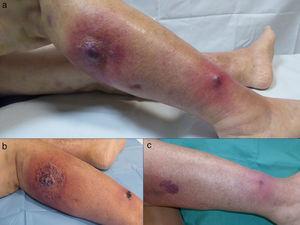 (a) Fase inicial de PG. (b) Evolución clínica a la semana de tratamiento tras la cual se inicia el descenso de 10mg de prednisona oral: disminución de eritema y edema lesionales. (c) Control evolutivo a las 7 semanas: lesiones residuales eritematopurpúricas.