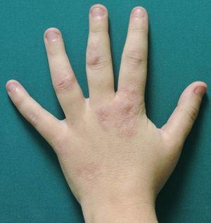 Granuloma anular sobre articulación metacarpofalángica de mano izquierda.