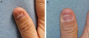 (a): verruga subungueal previa al tratamiento. (b): después de 7 ciclos de tratamiento.