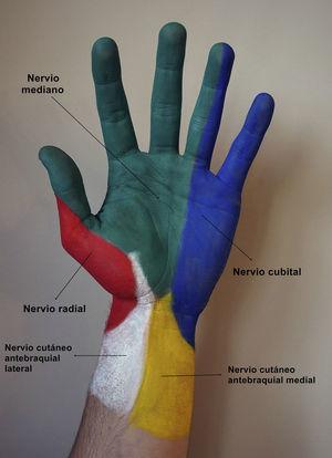 Inervación cutánea de la cara anterior de la mano. Amarillo: nervio cutáneo antebraquial medial; azul: nervio cubital; blanco: nervio cutáneo antebraquial lateral; rojo: nervio radial; verde: nervio mediano.