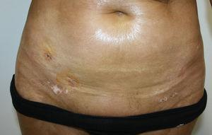 Áreas extensas de coloración blanco-nacarada muy induradas en el abdomen.