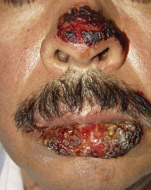 Severe oral mucositis, also involving the nose.