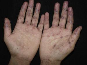 Several erosions on the palms of the hands, often recalcitrant.