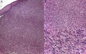 Infiltración difusa y mal delimitada de fascículos entrelazados de fibras musculares lisas, compuestas por células fusiformes, de núcleo alargado y extremos romos («en forma de cigarro puro») con marcado pleomorfismo y un citoplasma eosinófilo. (Tinción de hematoxilina-eosina: A. X10 B. X20C. X40).