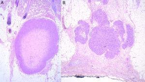Comparativa histopatológica de leiomiosarcoma hipodérmico primario A) y metástasis cutánea secundaria de leiomiosarcoma B).